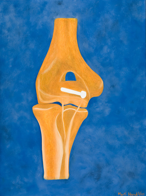 medical-paintings-bone-screw